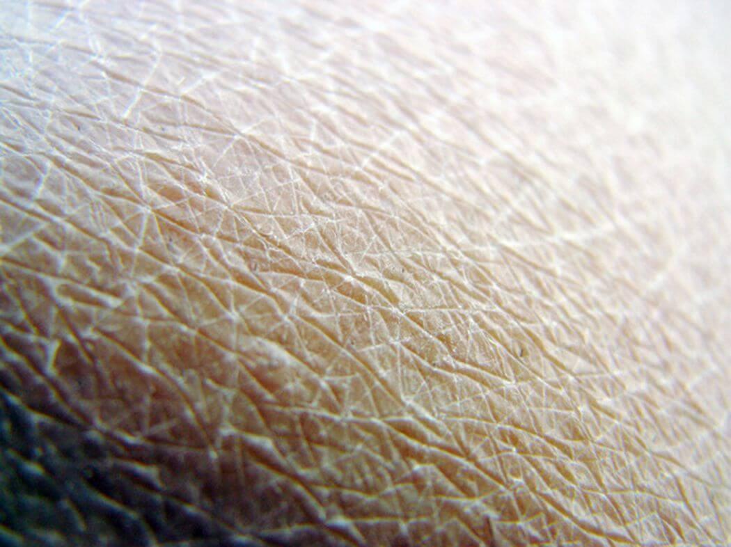На каждых трех сантиметрах человеческого тела примерно 32 миллиона бактерий